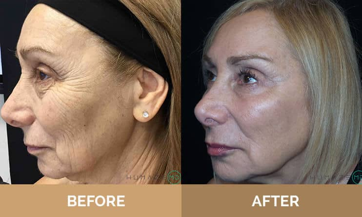 Woman before and after wrinkle treatments