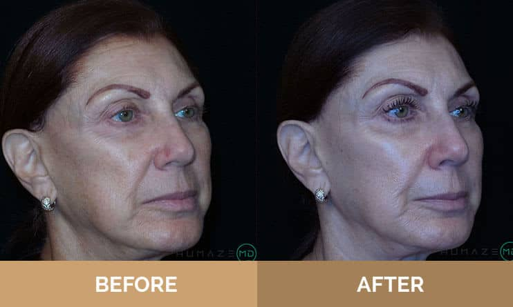 Middle aged woman, before and after treatment