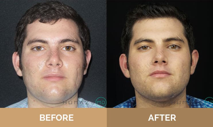 Before and after of young adult men's skin